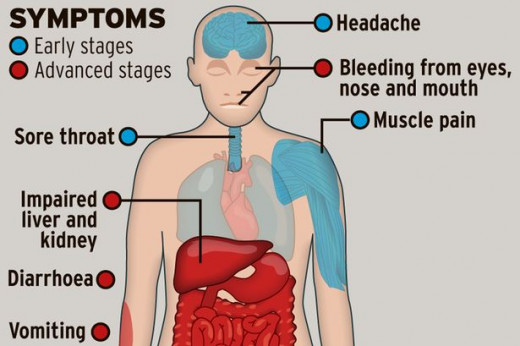What are Ebola symptoms