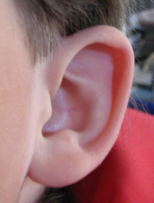 Learn how to safely remove earwax