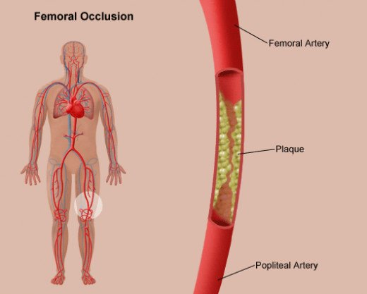 These pictures demonstrates atherosclerosis, or plaque build up in between the femoral and popliteal artery.
