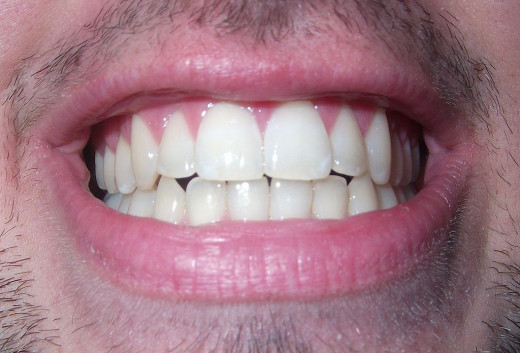 Coconut oil pulling for dental care