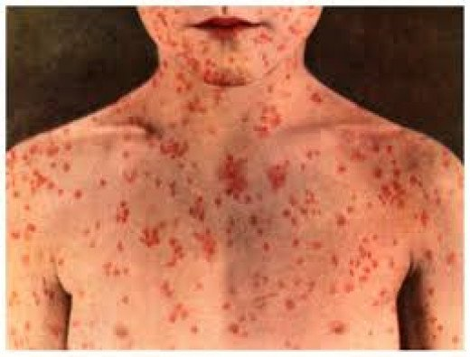 Adult measles as it usually presents in widespread rash.