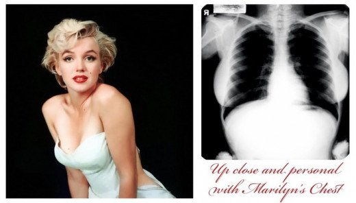 Monroe's chest x-ray