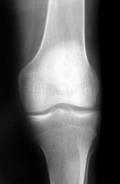 X-rays are one way that psoriatic arthritis is detected.