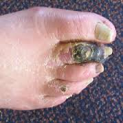 another gangrenous toe due to diabetes