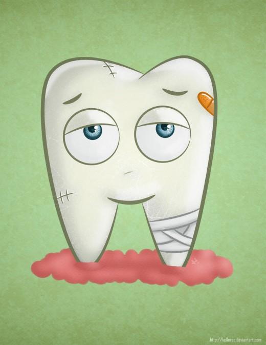 Tooth Cartoon Cavity