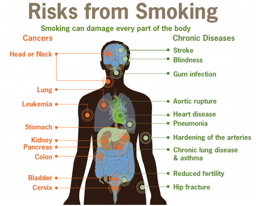 Health problems caused by your smoking habit