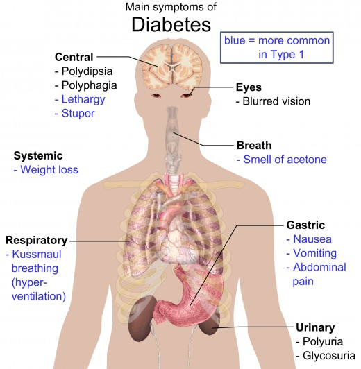 Different sites, where Diabetes affects in our body. These are the possible signs of Diabetes