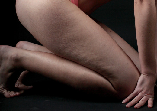 Cellulite is a normal part of a woman's body. Learn more about the available treatments for cellulite and whether they work.