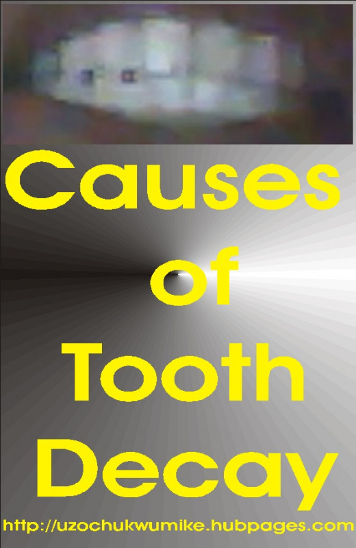 The causes of tooth decay in both adults and children.