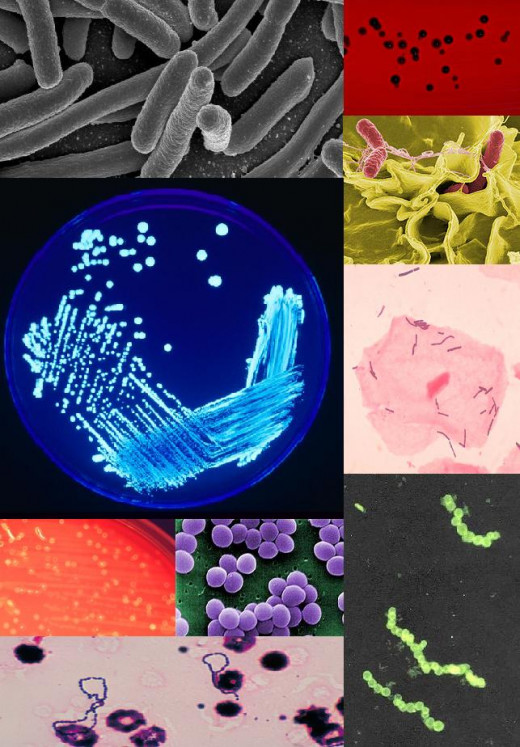 """BacteriaColleage"""" by PeskyPlummer - Own work. Licensed under CC BY-SA 3.0 via Wikimedia Commons"""