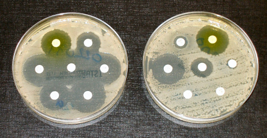 Bacteria in the culture on the left are susceptible to the antibiotic in each disk, as shown by the dark, clear rings where bacteria have not grown.  Dr Graham Beards - Own work. Licensed under CC BY-SA 3.0 via Wikimedia Commons