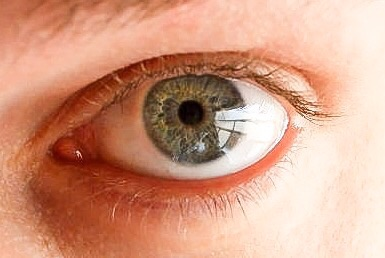Anything that goes into the eye must be clean and washed frequently. Bacterial biofilms can form on contact lenses.
