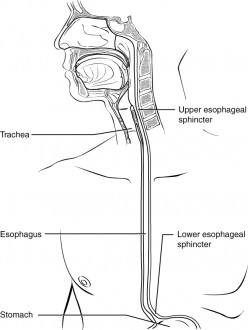 Why does Food get Stuck in my Esophagus?