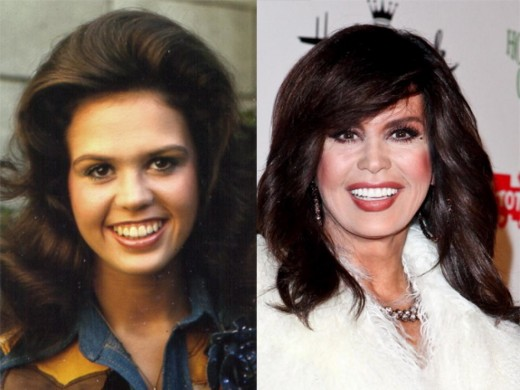 Marie Osmond finally looks her age.