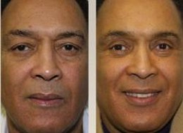 Without Face Lift Surgery