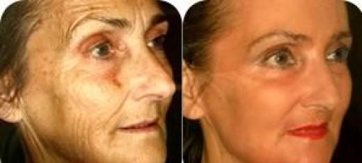 Wrinkle Free Facial Yoga