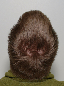 Healthy hair free of scalp problems
