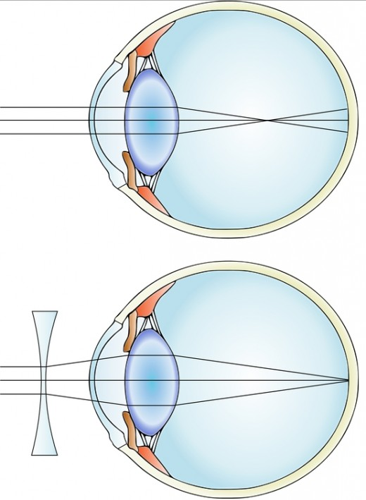 Myopia arises when the focus of the image is above the retina