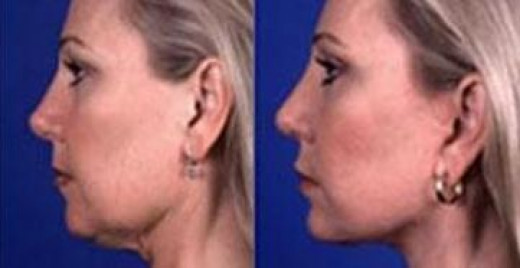 Double Chin Facial Yoga
