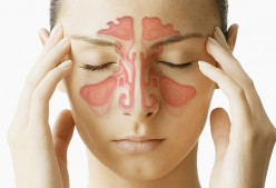 How to Stop Chronic Sinusitis