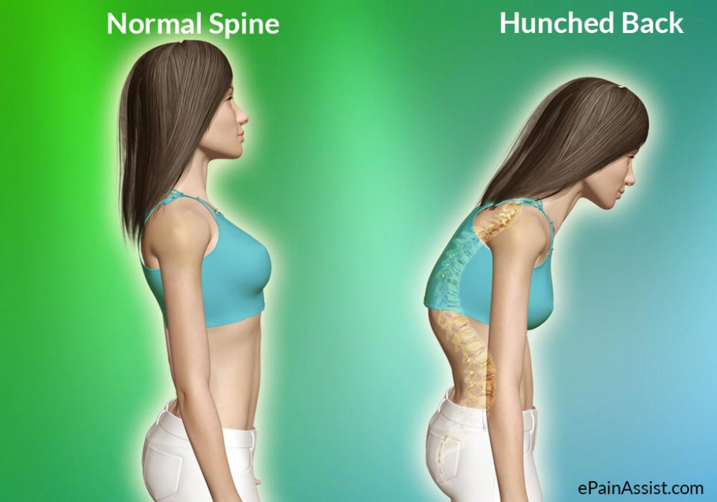 6 Exercises To Fix Your Hunched Back Caloriebee