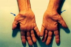 Carpal Tunnel Syndrome - Home Management Part 2 - Prevention and Treatment