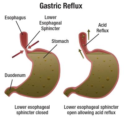 Image result for Gastric Reflux