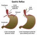 Acid Reflux Symptoms,Causes and Remedies