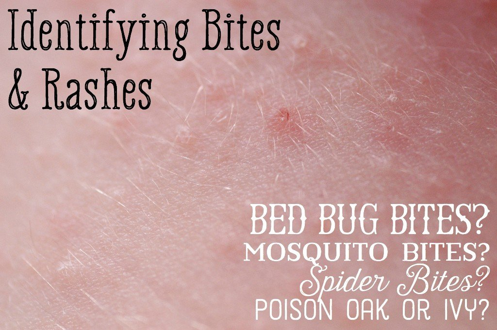 a comparison of the features of bed bugs and stink bugs Bed bug why harmful ruthless biter of humans and and even other stink bugs with so much hate from us humans features loading.