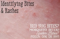 Mosquito, Bed Bug, Spider Bite Differences