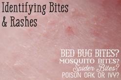 Mosquito, Bed Bug, Spider Bite Comparison