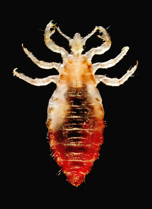 Adult head lice cannot survive away from their food sources for 1-2 days. This duration is important for natural remedies