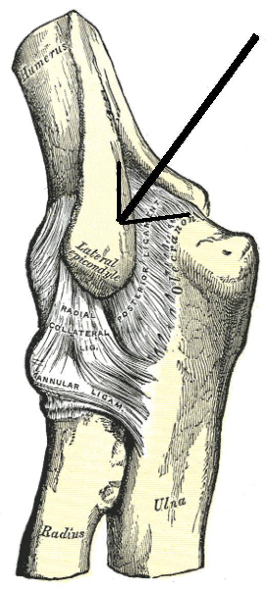 Lateral Epicondyle as indicated by the arrow