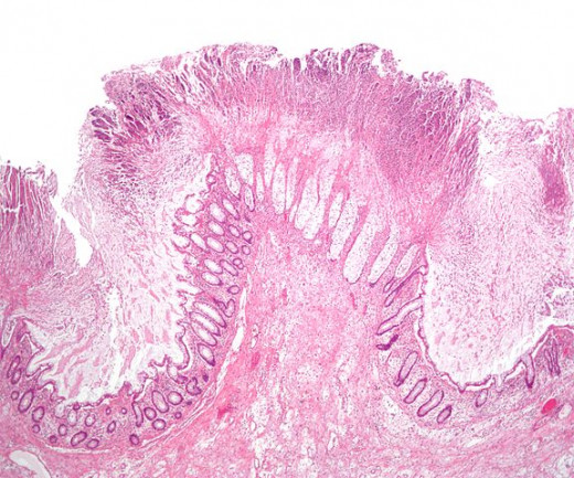 """""""Colonic pseudomembranes low mag"""" by Nephron - Own work. Licensed under CC BY-SA 3.0 via Wikimedia Commons - http://commons.wikimedia.org/wiki/File:Colonic_pseudomembranes_low_mag.jpg#/media/File:Colonic_pseudomembranes_low_mag.jpg"""