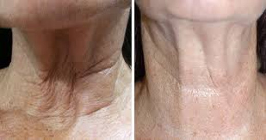 The facial rejuvenation with PRP