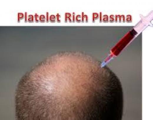 PRP Treatment in Hair Transplant