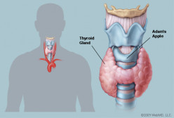 My Thyroid...My Problem