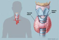 My Thyroid...My Problem
