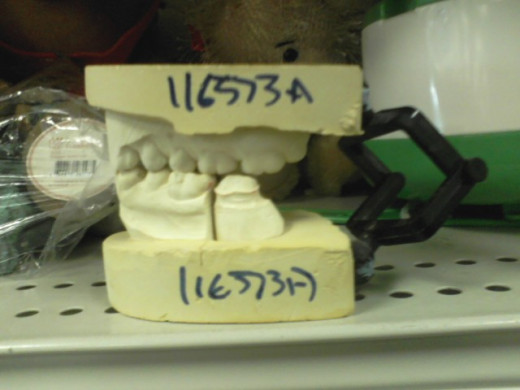 If these were general dental model teeth, maybe I could see someone buying them but I think these were made to fit someone with a bridge. Sheesh.