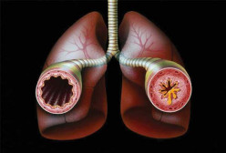 Asthma Triggers, Condition  and Remedies that will Help Better this Condition