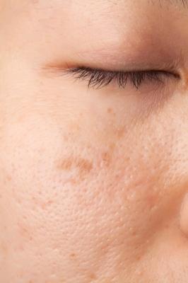 Acne Scars.