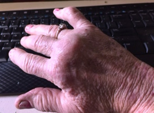 My right hand all inflamed and hurting, July 2015