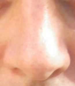 Getting Rid of Blackheads on Nose is Easy at Home