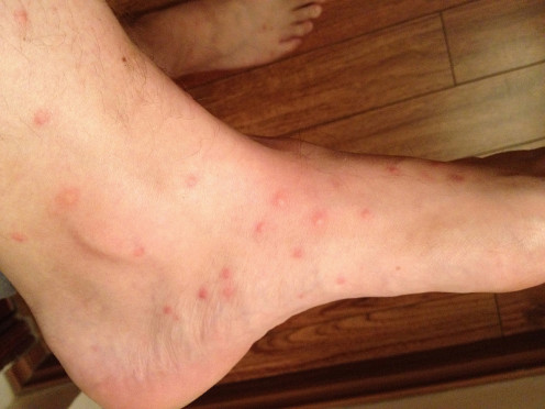 Flea bites typically happen around the feet and ankles; where there is one flea, there are usually several, so it is common to see bites clustered together