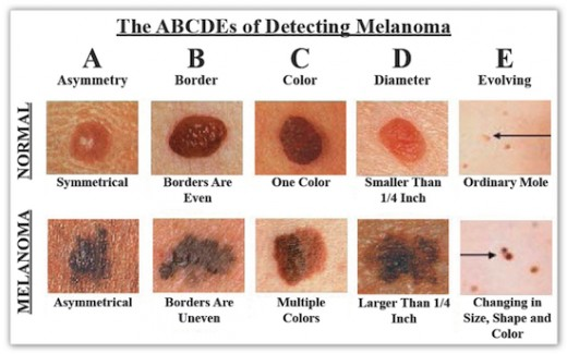 Recognize the symptoms of Skin Cancer