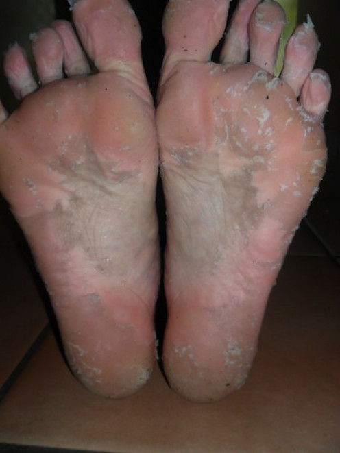 A Do-It-Yourself Peel for Dry, Cracked Feet