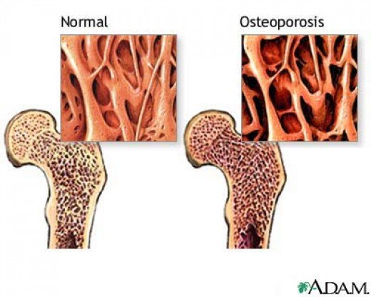 menopause age of onset