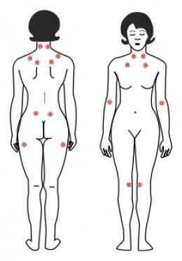 Fibromyalgia: Tender points