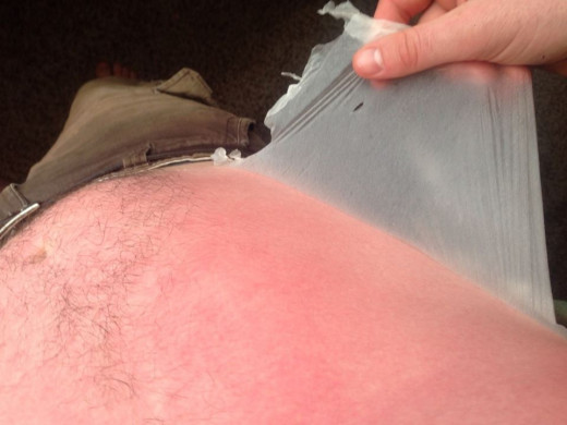 The photo depicts a sunburn suffer. After this person applied Aloe Vera to his or her skin, it starts to peel and you feel relief from the burn. The redness would disappear soon.