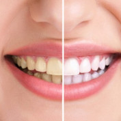 howtowhiten-teeth profile image